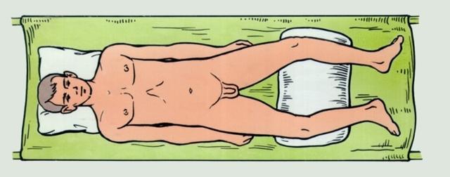 Перелом костей таза: неотложная помощь, последствия, сколько длится лечение