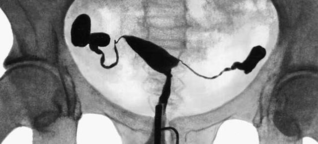 Гистеросальпингография маточных труб: что это, как проводится, подготовка