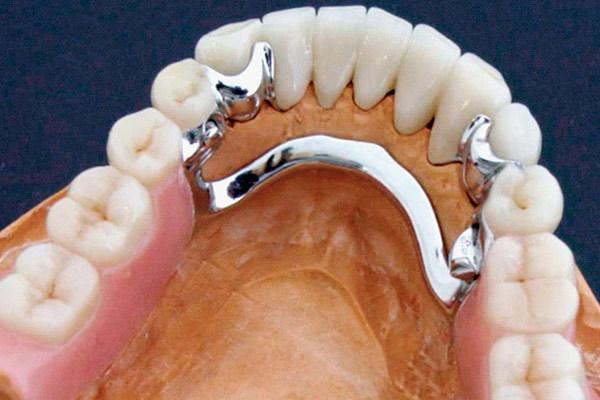 Бюгельные протезы для зубов: какие лучше на верхнюю и нижнюю челюсть