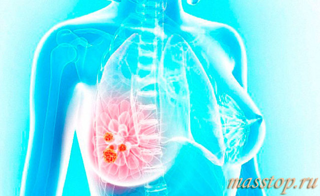Мастодиния молочной железы: что это такое, симптомы и лечение масталгии у женщин