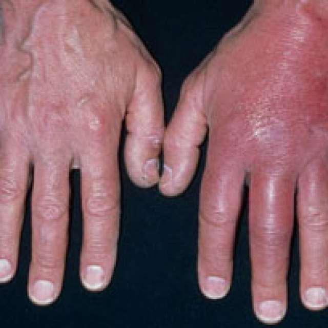 Как проявляется стафилококк у взрослых и как его лечить