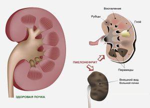Уреаплазма, микоплазма – 2 главных коммерческих диагноза. Исторические сведения, научные мнения, обманные схемы диагностики и лечения.