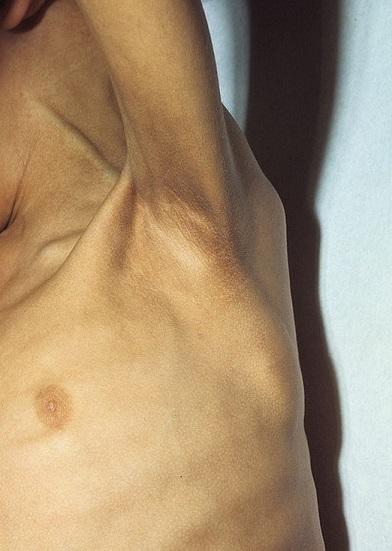 Дистрофия кожи лица и тела: фото, симптомы, диагностика, лечение