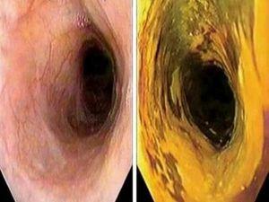 Ожог пищевода: симптомы, осложнения, первая помощь и лечение, последствия