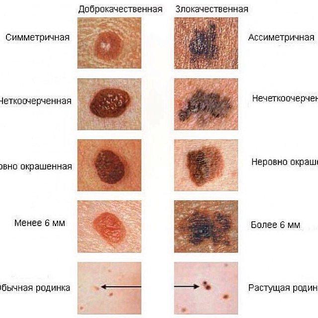 Злокачественное лентиго меланома: что это такое, стадии, прогноз, симптомы, фото, лечение