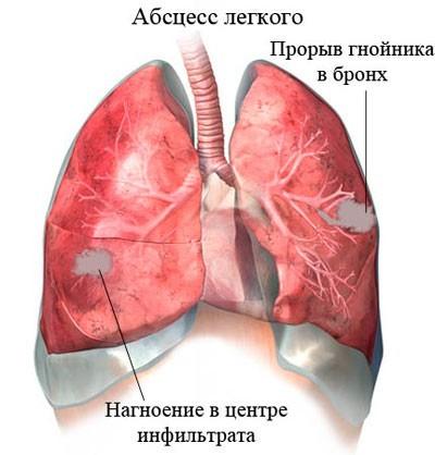 Абсцесс легкого – симптомы и жалобы, диагностика, лечение и профилактика.