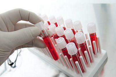 Эмфизема легких: симптомы, лечение, причины и диагностика эмфиземы легких.