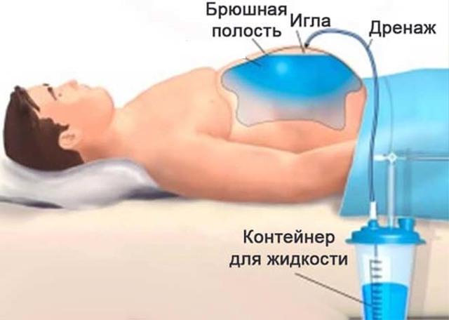 Канцероматоз брюшины: причины, симптомы, лечение, прогноз и выживаемость