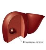 Гемангиома на коже, гемангиома внутренних органов, кости: лечение гемангиомы в детей