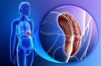 Спленомегалия селезенки: симптомы и лечение, причины, лечение народными средствами