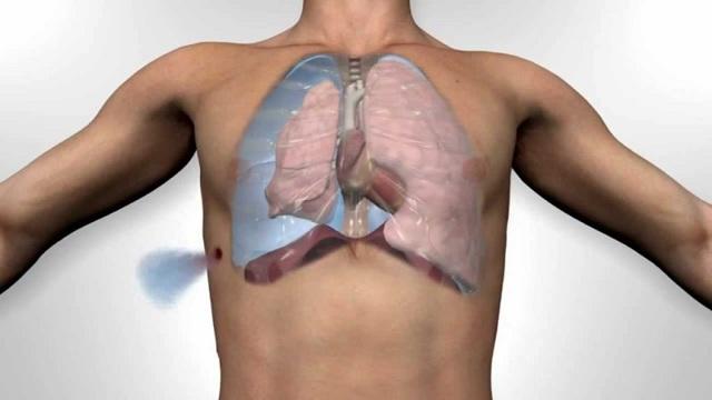 Что надо предпринять при травме грудной клетки, лечение при переломах грудины и ребер