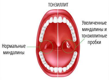 Хроническая ангина: осложнения, ревматизм, необходимость удаления миндалин.