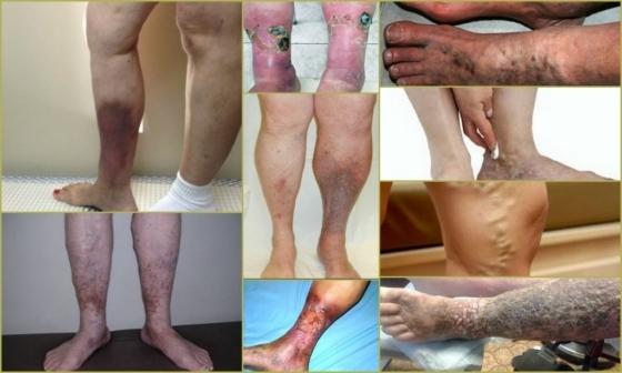 1200b1195bd3ae0d54e5afcff99d14d8 - Doença pós-tromboflebite (síndrome PTFB) - sintomas, diagnóstico e tratamento