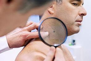 Стрептодермия у взрослых: как начинается, фото, как лечить