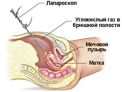 Спайки малого таза: что это, как болят, куда отдают, симптомы и лечение