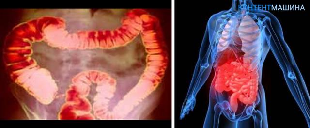 Стеноз прямой кишки: симптомы, лечение, реабилитация после операции