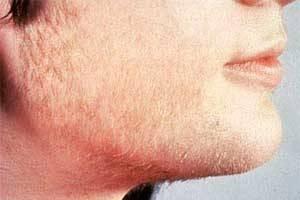 Гипертрихоз: как наследуется, признаки заболевания, лечение гипертрихиоза