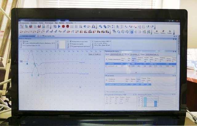 Электронейрография: что это такое, расшифровка электронейрографии нижних конечностей