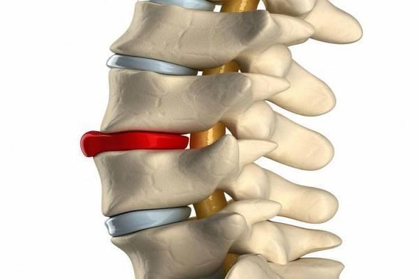 Боли в спине во время беременности: что делать, если болит спина при беременности