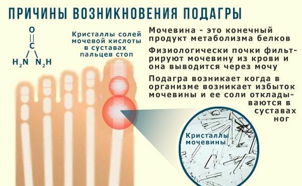 Подагра: признаки и лечение в домашних условиях, лечение подагры народными средствами