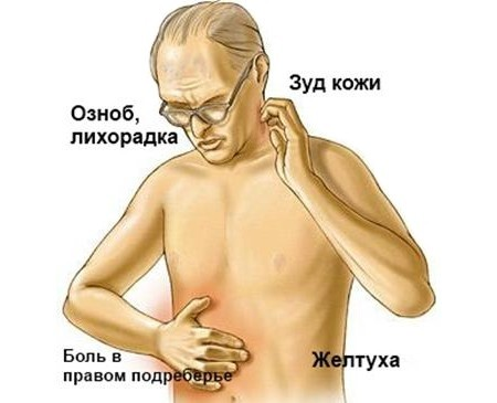 Холангит: симптомы и лечение, признаки, профилактика, диета и прогноз
