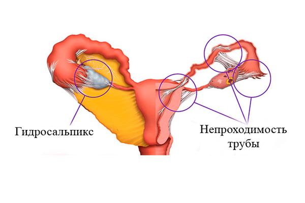 Трубно-перитонеальное бесплодие: что это такое, что делать, лечение.