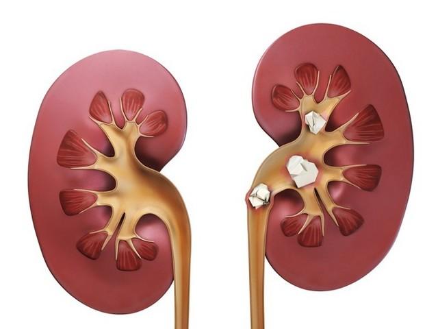 Нефролитиаз: симптомы и лечение, растворение, дробление камней в почках