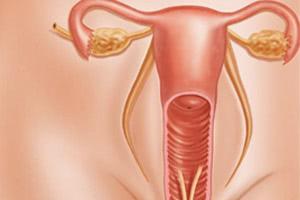Женский вагинизм: причины, степени, лечение вагинизма