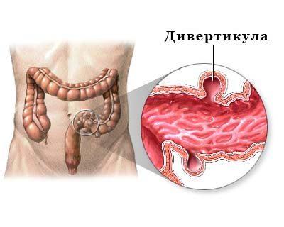 Дивертикул желудка – что это такое, симптомы, диагностика, лечение