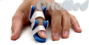 Перелом фаланги пальцев кисти руки: симптомы, что делать, сколько носить гипс