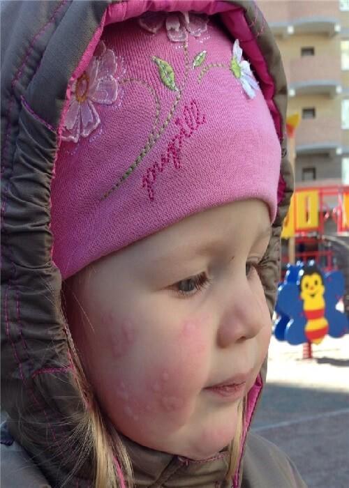 Фотодерматит: симптомы, лечение аллергии на солнце