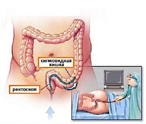 Инфекционный колит: симптомы, лечение инфекционного колита кишечника