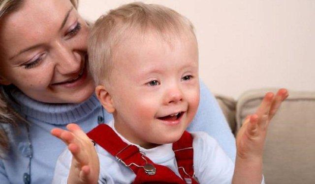 Понятие о синдроме Эдвардса, что такое трисомия, признаки синдрома, прогнозы, методы диагностики, попытки лечения.
