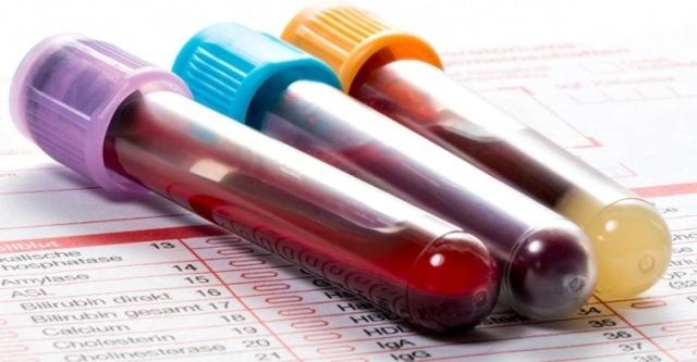 Анализ крови на ревматоидный фактор: что это такое, подготовка и расшифровка
