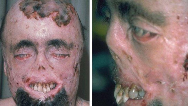 Порфирия – что это такое, причины, симптомы и виды патологии