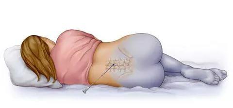 Эпидуральная анестезия при родах, последствия эпидуральной анестезии, эпидуральная анестезия при кесаревом сечении