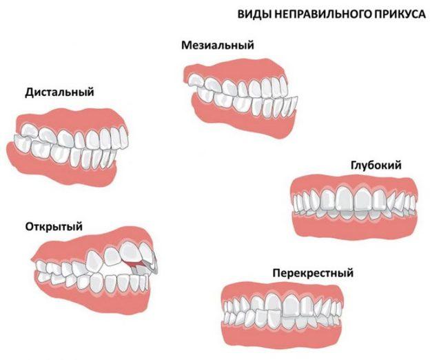Зубная пластинка для детей или брекеты – что лучше, показания к установке