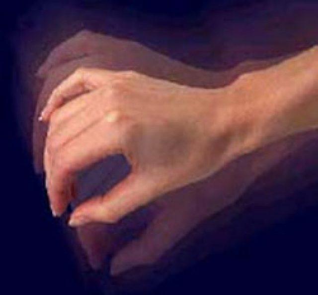 Тремор рук: причины и виды, как избавиться от тремора рук