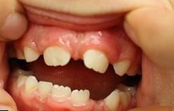 Диастемы и тремы: что это, отличия, брекеты, ортодонтическое лечение