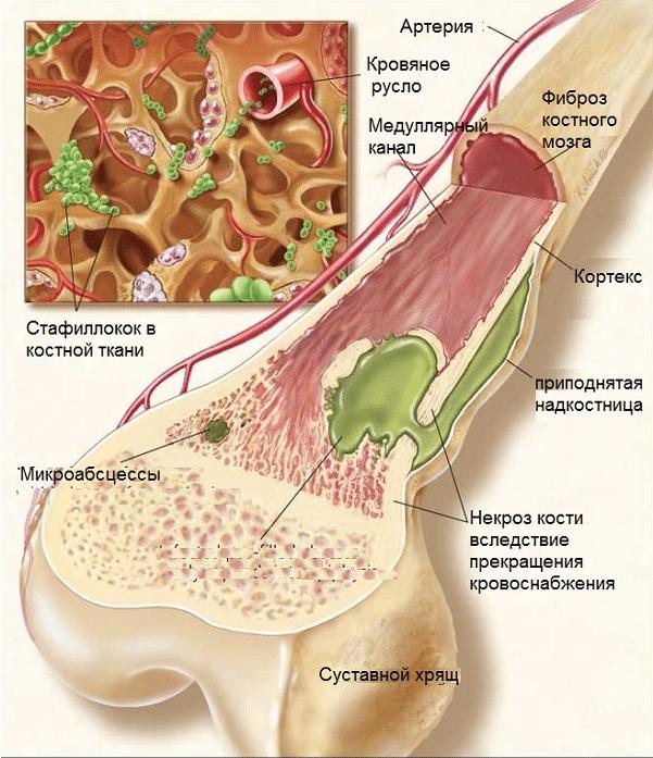 Симптомы и лечение хронического остеомиелита, причины развития заболевания, методы лечения лекарственными препаратами и суть операции при остеомиелите.