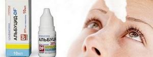 Эффективные средства от ячменя на глазу: капли, мази, операция при ячмене на веке
