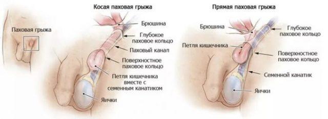 Боль в паху у мужчины: причины боли справа и слева в паху, к какому врачу идти