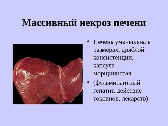 Некроз печени: симптомы, причины, лечение, осложнения, риски