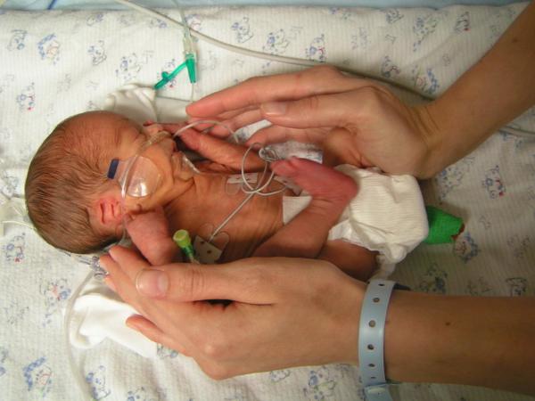Угроза преждевременных родов: причины, признаки, сроки, ведение преждевременных родов