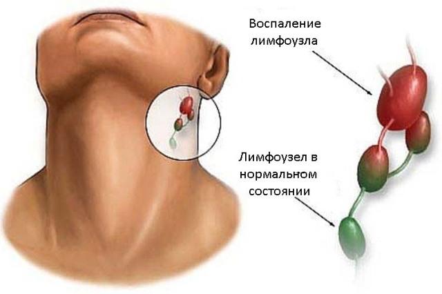 УЗИ лимфоузлов шеи, подмышки, паховой области, брюшной полости: что показывает