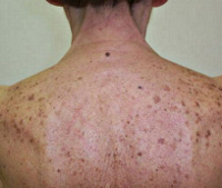 Лентиго: симптомы и лечение, причины развития и профилактика лентиго