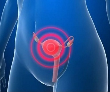 Кровотечение при климаксе: причины, симптомы и лечение, как остановить