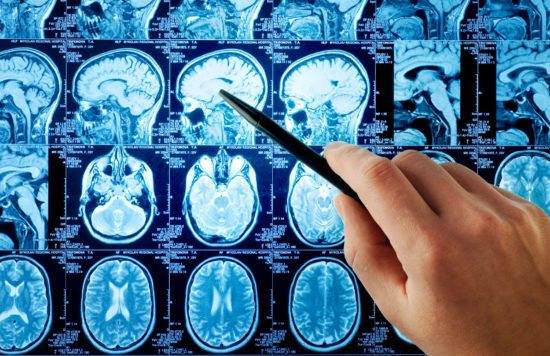 МРТ головы: что показывает и как делают МРТ головы и сосудов головного мозга