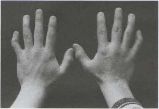 Синдром Шерешевского-Тернера: причины возникновения, тип наследования, когда встречается