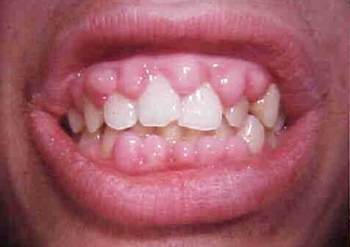 Гипертрофический гингивит: причины, симптомы, лечение, признак отечной формы